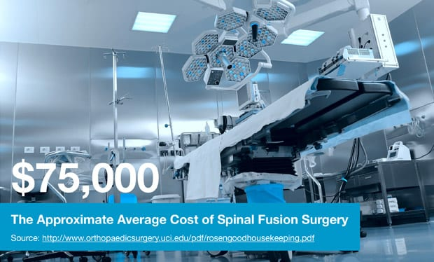 $75,000 The Approximate Average Cost of Spinal Fusion Surgery