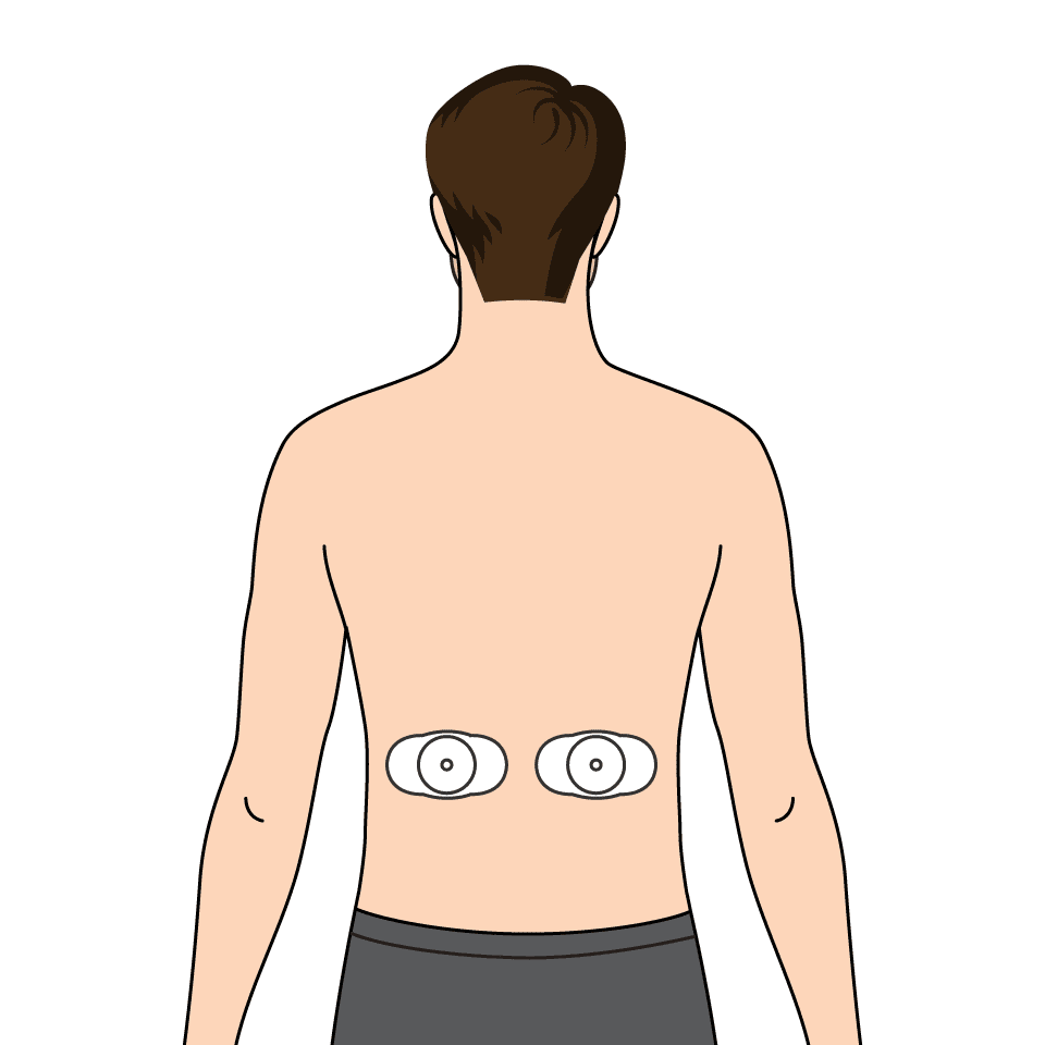 EMS P5 (Build Endurance) – pads on my lower back