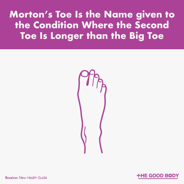 Morton's Toe – Where the Second Toe Is Longer than the Big Toe