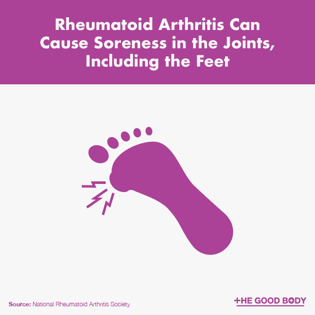 Rheumatoid Arthritis Can Cause Soreness in the Foot Joints