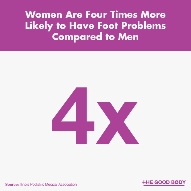 Women are four times more likely to have foot problems compared to men